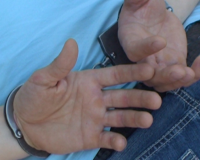 В Смоленской области подозреваемый сбежал из изолятора временного содержания