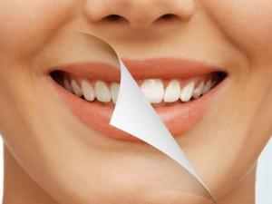Выбор методик профессионального отбеливания зубов