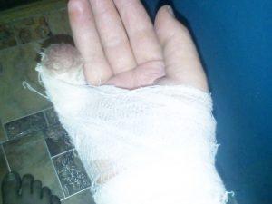 Смоленский «каннибал» откусил девушке палец