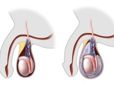 vosstanovlenie-spermatogeneza-posle-varikotsele