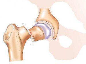 Перелом шейки бедренной кости. Методика лечения
