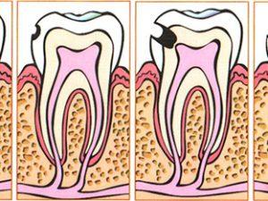 Пульпит, как еще один повод посетить стоматолога