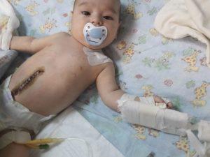 Смолян просят помочь семимесячному малышу, пережившему клиническую смерть