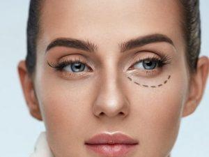 Хирургическая коррекция век – омоложение взгляда с помощью пластического хирурга